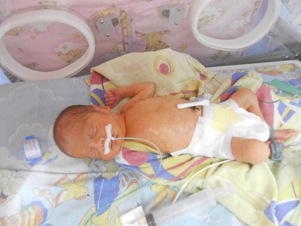 Питание через зонд новорожденного